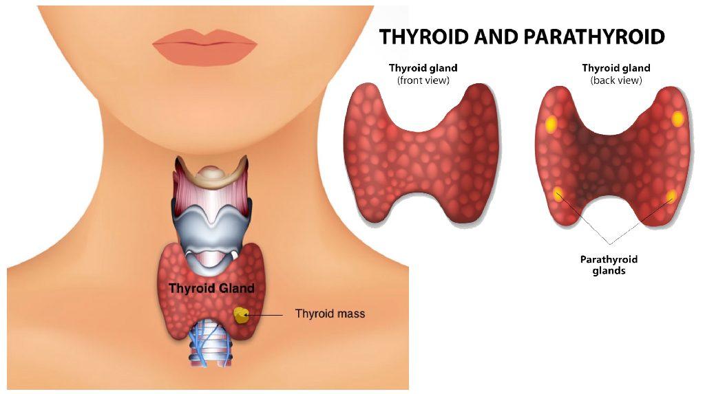 Cancer Treatment Thyroid Cancer Cancer Treatment